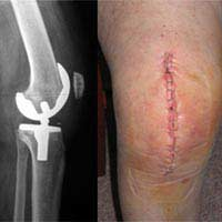 Knee Replacement Surgery Hip Replacement