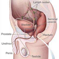 Prostate Cancer Prostate Gland Operation